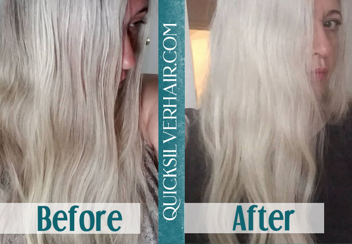 Collage of Before and After QuickSilverHair Jen G