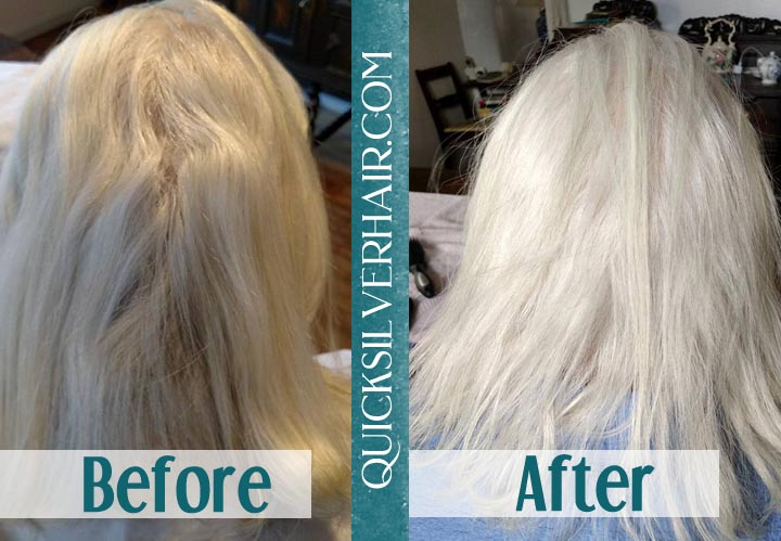 Before and After QuickSilverHair Agatha Collage