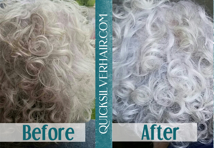 Image of Before and After Review QuickSilverHair Vicki M