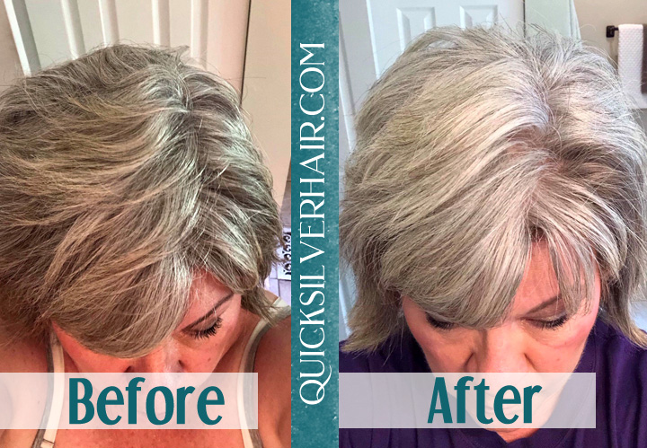 Image of Before and After QuickSilverHair Shelley W