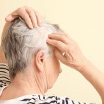 image of a woman schicking her scalp for hair loss