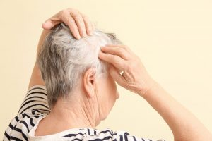 image of a woman checking her scalp