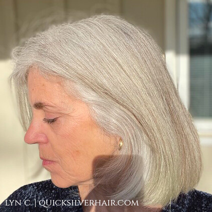 Image of Lyn C with sun damaged gray hair